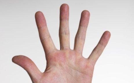 memotong jari berlebih