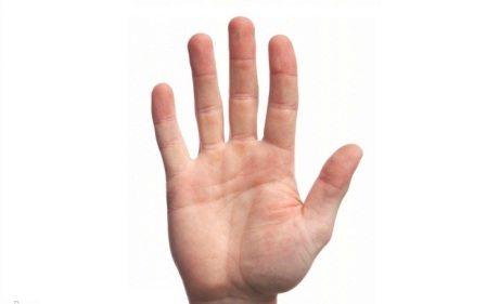 mengobati tangan sakit
