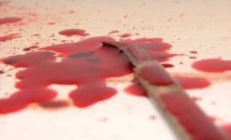 cara merawat mayat korban mutilasi