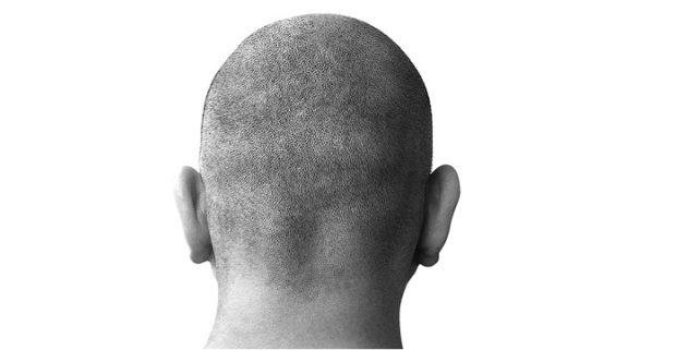 mengobati botak