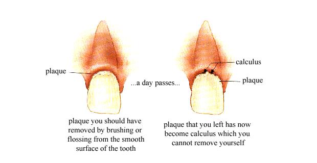 cara membersihkan gigi kuning