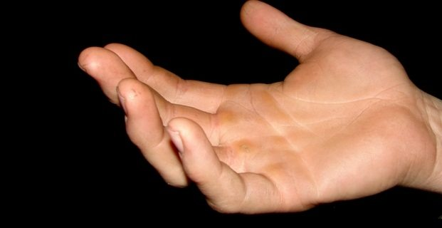 telapak tangan dan kaki